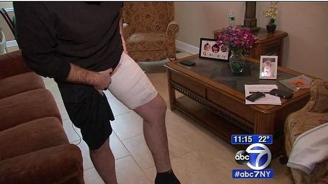 Le explota un iPhone en su pierna y le causa quemaduras de segundo y tercer grado