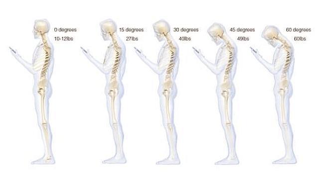 El síndrome del cuello roto por culpa de los «smartphones»