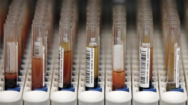 Google anuncia una alianza con una farmaceútica para luchar contra la diabetes